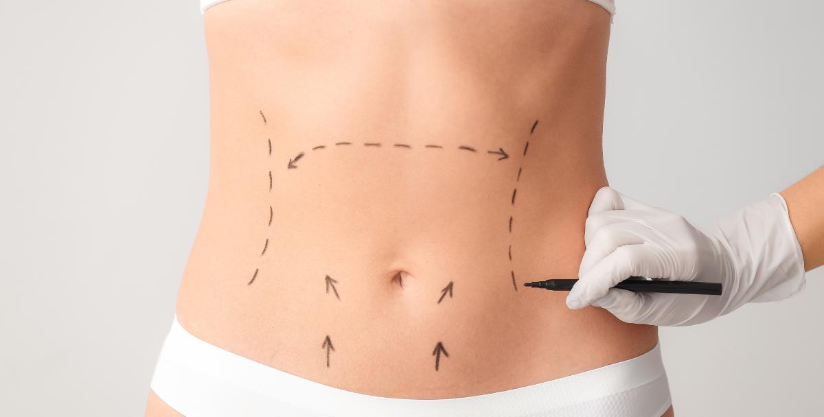 κοιλιοπλαστική ανόρθωση στήθους βραχιονοπλαστική