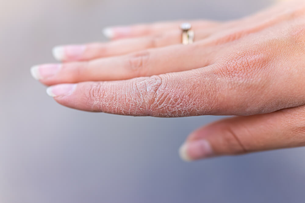 σκασμένα χέρια περιποίηση